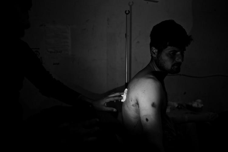 25.03.2015 - Ain al-Arab (Koban) Syrien. Seit die Stadt im Februar 2015 von den kurdischen KŠmpfern der YPG YPJ befreit wurde haben sich die Front und die KŠmpfe auf die Dšrfer um Kobane in Rojava verschoben. Verletzter KŠmpfer der YPG wird im Notfall-Krankenhaus in Kobane behandelt. © Mark MŸhlhaus / attenzione / Agentur Focus